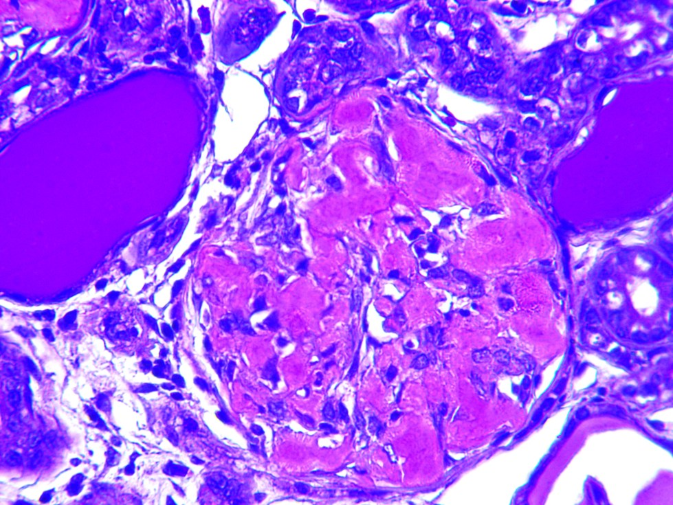 Human Kidney - Methyl Violet stain for amyloid