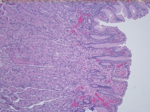 Human stomach with helicobacter pylori stained with hematoxylin and Eosin