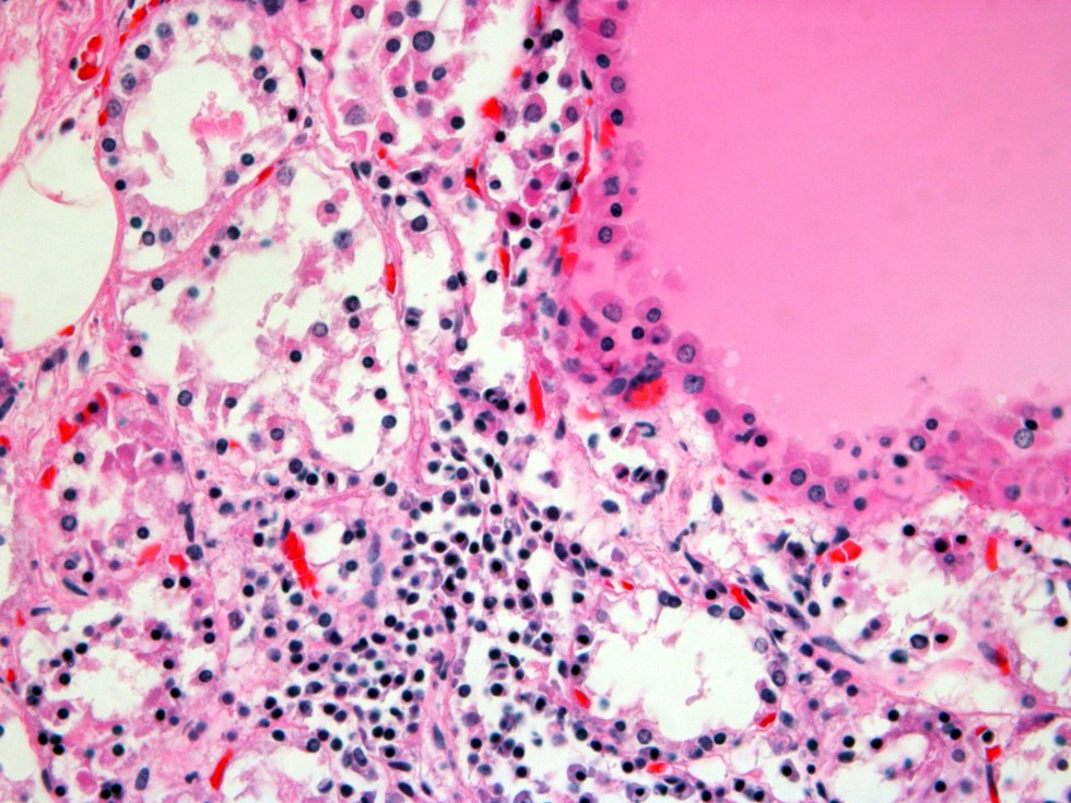 Human Thyroid H&E stain 40x
