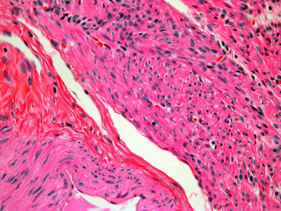 Human Uterus H&E stain 40x