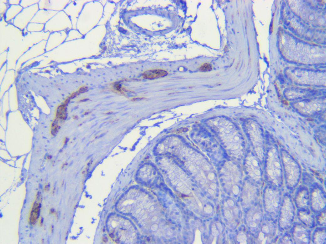 Mouse colon Synaptophysin antibody