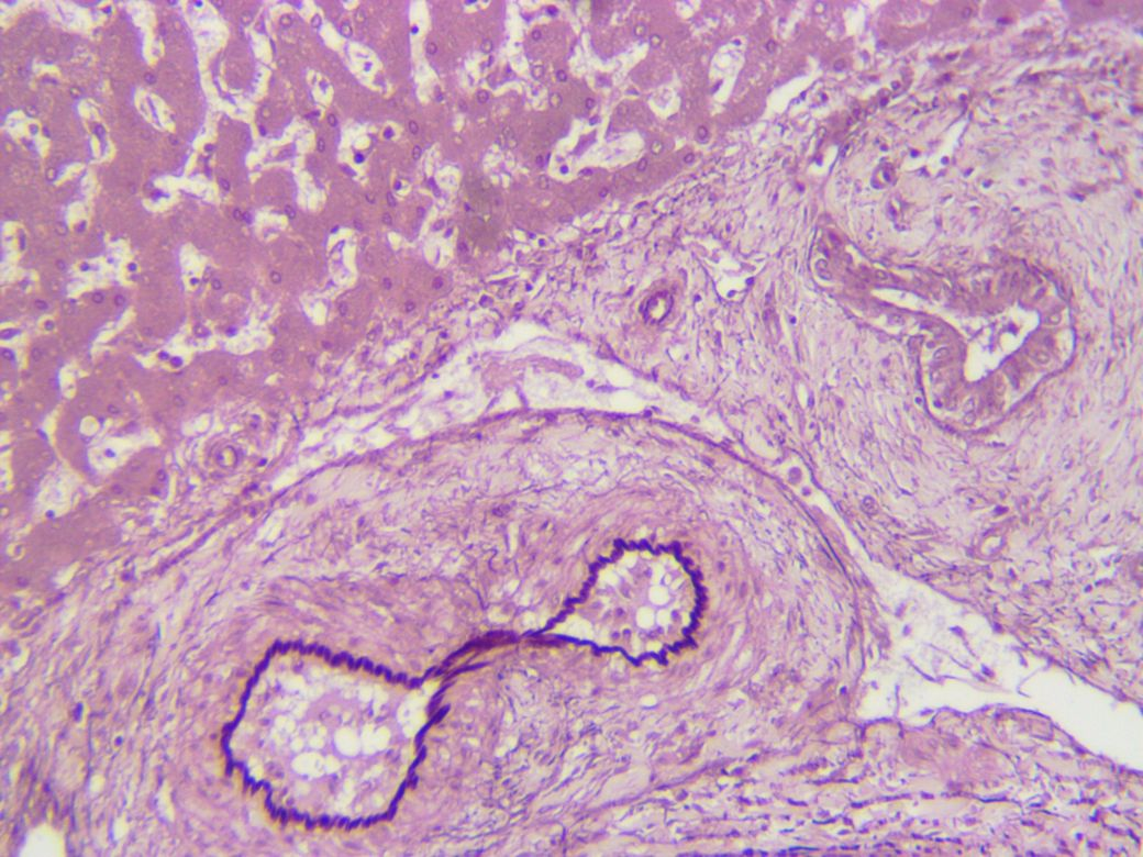 Human Liver - hepatitis - Orcein stain for elastic