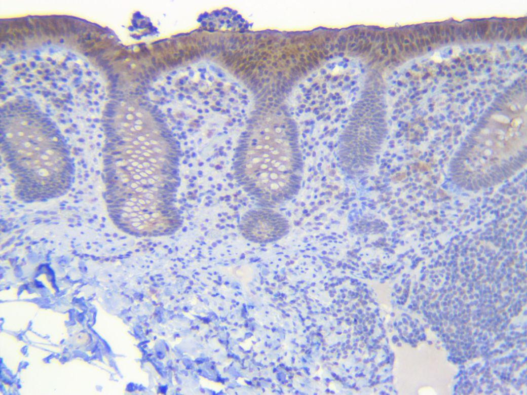 Human appendix CEA