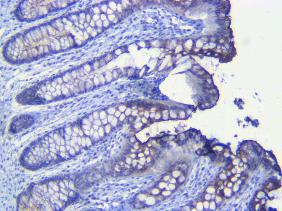 Human colon CEA