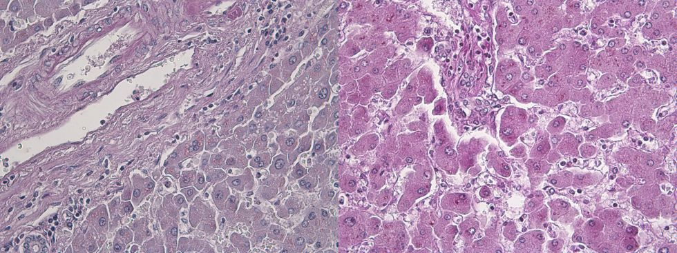 Human liver PASD and PAS compared