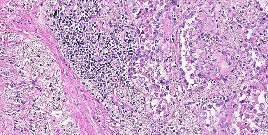 Human lung adenocarcinoma H and E Stain