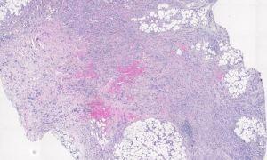 Human Metastatic lobular Carcinoma H and E stain
