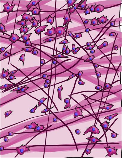 animated illustration of areolar CT