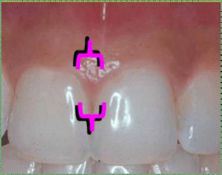 interdental gingiva