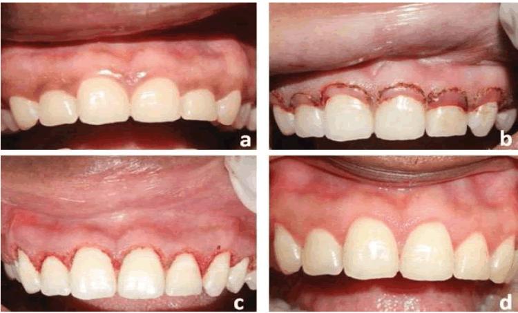 scientific photos of gingivoplasty