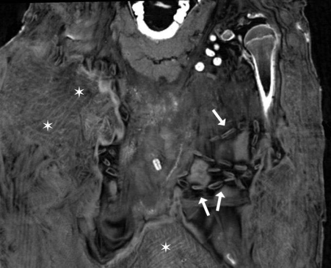 Detalle del interior de la momia de la adolescente. Se aprecian segmentos de la capa textil más interna y cuentas de collar.