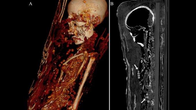 Interior de la momia de la mujer adulta. (A) Se aprecian cuentas de collar. (B) Cuentas perforadas en detalle.