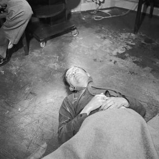 Himmler's corpse in Allied custody after his suicide by poison, 1945.