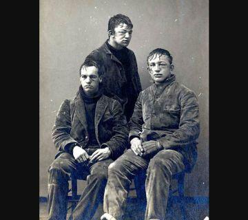 Slachtoffers van een sneeuwballengevecht