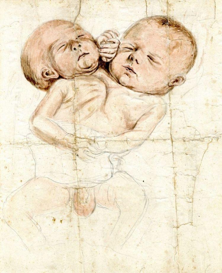 Tekening van een Siamese tweeling - Stadsarchief Vlaardingen