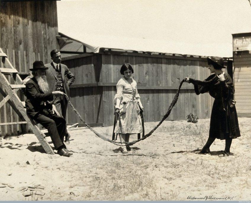 Een jong meisje is aan het touwtje springen met de baard van Hans Langseth, ca. 1920 - Wellcome Library, London. Wellcome Images, CC BY 4.0