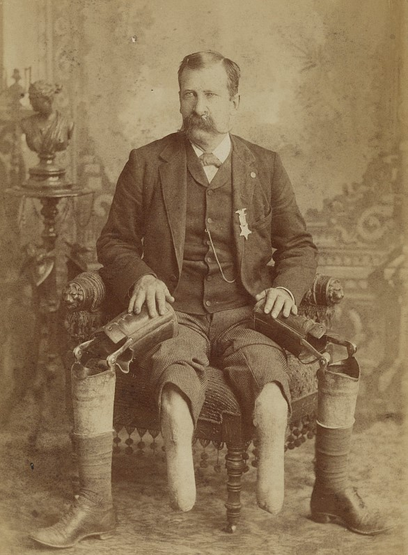 Civil War veteran John W January sitting on a chair in a suit with a medal attached to it. He has detached his prosthetic legs showing both his legs that have been amputated.