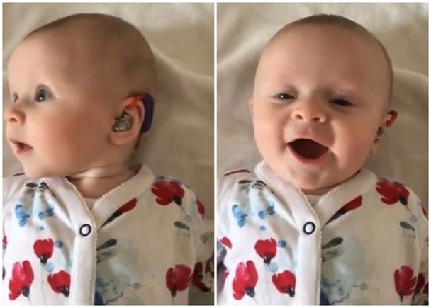 嚴重失聰女嬰獲助聽器 初聞母親說話笑不停|即時新聞|亞歐非|on.cc東網