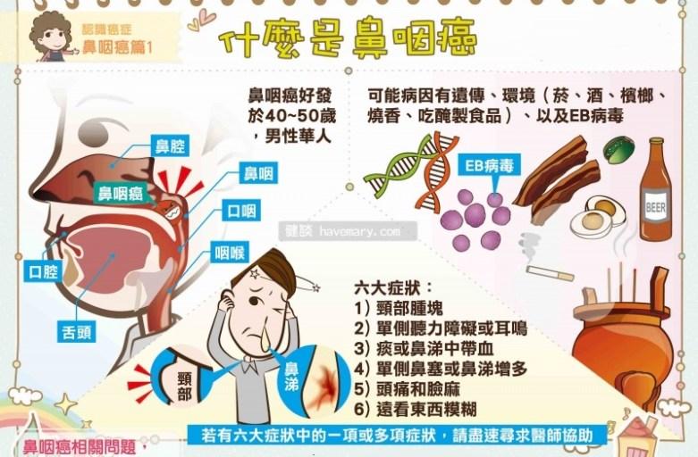 鼻塞流鼻血以為是鼻炎、鼻竇炎? 鼻咽癌早期病徵不易察覺!