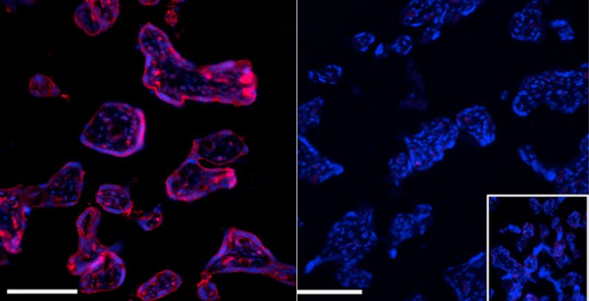 Las micrografías una al lado de la otra muestran celdas iluminadas en violeta (izquierda) y azul (derecha) sobre un fondo negro