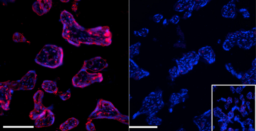 Side by side micrographs show cells lit in purple (left) and blue (right) against a black background