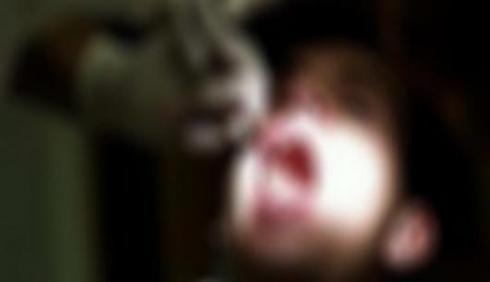 หมอฟันสาวแค้น ถอนฟันอดีตแฟนหนุ่มจนหมดปาก สาเหตุจาก...