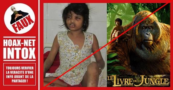 L'intox autour de la petite Mowgli Girl.