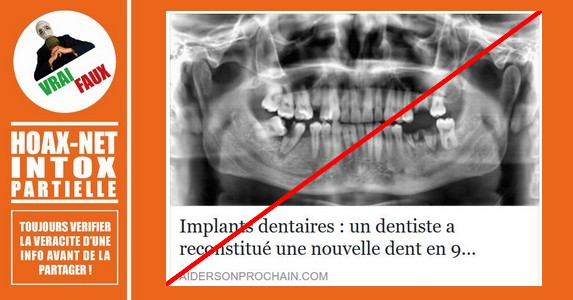 NON, un dentiste ne peut pas reconstituer une nouvelle dent en 9 semaines