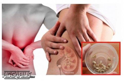 How to Prevent Kidney Stones?
