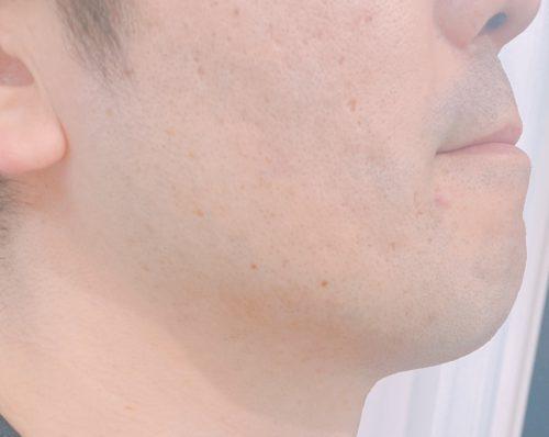 照射後のヒゲ部分の肌
