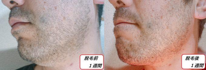 男性の左頬のヒゲが伸びた写真 写真左側・脱毛前と右側・脱毛後1週間
