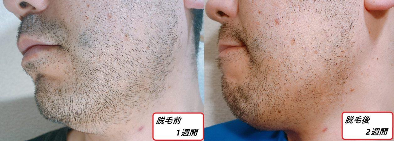 男性の左頬のヒゲが伸びた写真 写真左側・脱毛前と右側・脱毛後2週間
