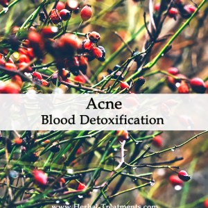 Herbal Medicine for Acne - Blood Detoxification