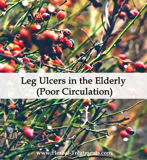 Herbal Medicine for Leg Ulcers in the Elderly (Poor Circulation)