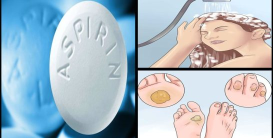 9 Surprising Uses for Aspirin You Never Knew Existed