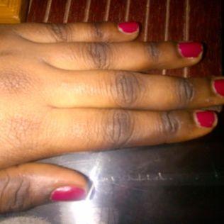 Dark knuckles from bleaching