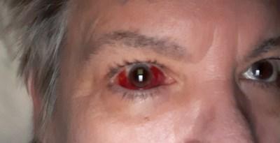 Cataratas da saúde dos olhos |  Holly's Bird Nest 4