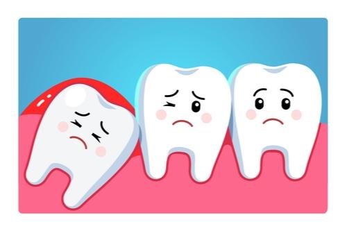家仁牙科 -智慧齒一定要整隻拔走嗎?拔除智慧齒程序您要知