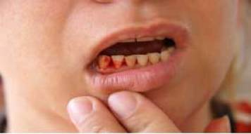 Diabetes causes gum bleeding and you might lose teeth