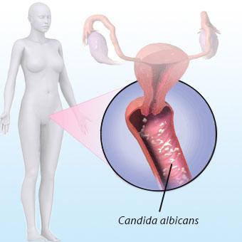 Vagina Photos Of Chenni Women