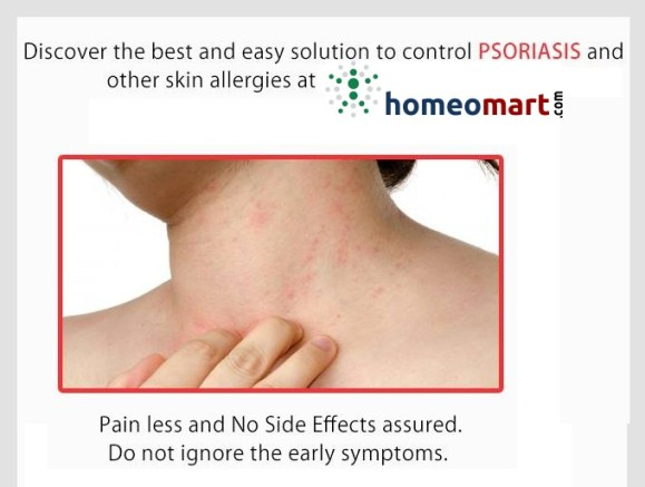 Homeopathic medicines for Psoriasis treatment. Skin allergies