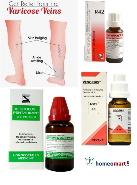varicose veins medicine in homeopathy