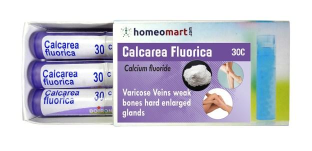 Calcarea Fluorica for Varicose Veins treatment