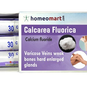 Calcarea Fluorica for Varicose Veins treatment