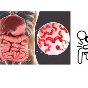 Diarrhea, Dysentry, IBS
