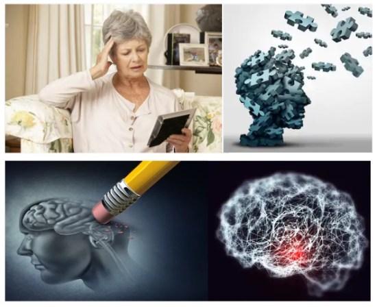 homeopathy-medicine-for-memory-loss-brain-fag