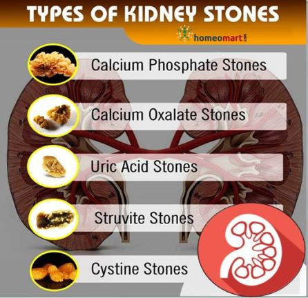 Types of Kidney Stones treatment