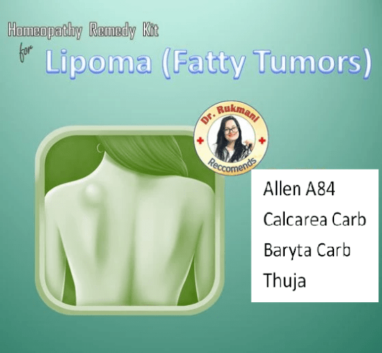 Lipoma (Fatty Tumor) Homeopathy Kit with Allen A84, Calcarea Carb, Baryta Carb, Thuja