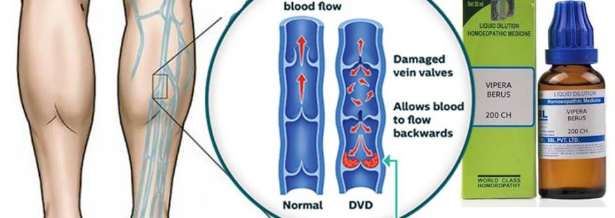 blood clot in leg, dvt treatment guidelines