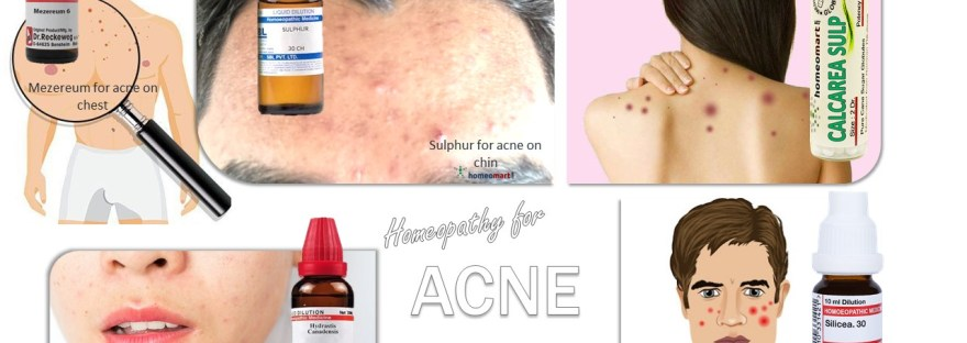 Homeopathy Acne remedies by location on body